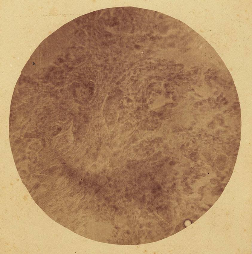 Dr. Samuel William Fletcher - Photo-Micrograph of Section of Cancer